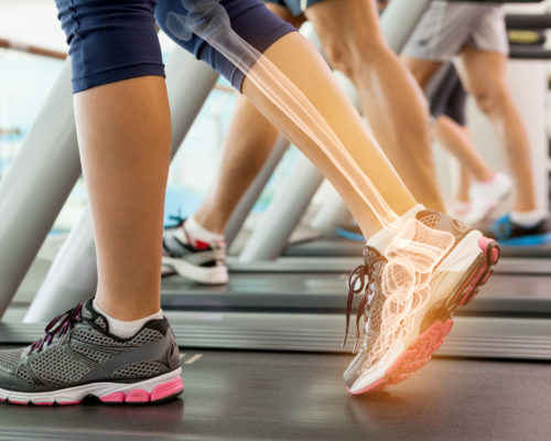 40311985 - digital composite of highlighted ankle of woman on treadmill