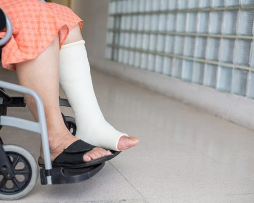 Senior adult leg injury sitting on wheelchair with plaster foot.